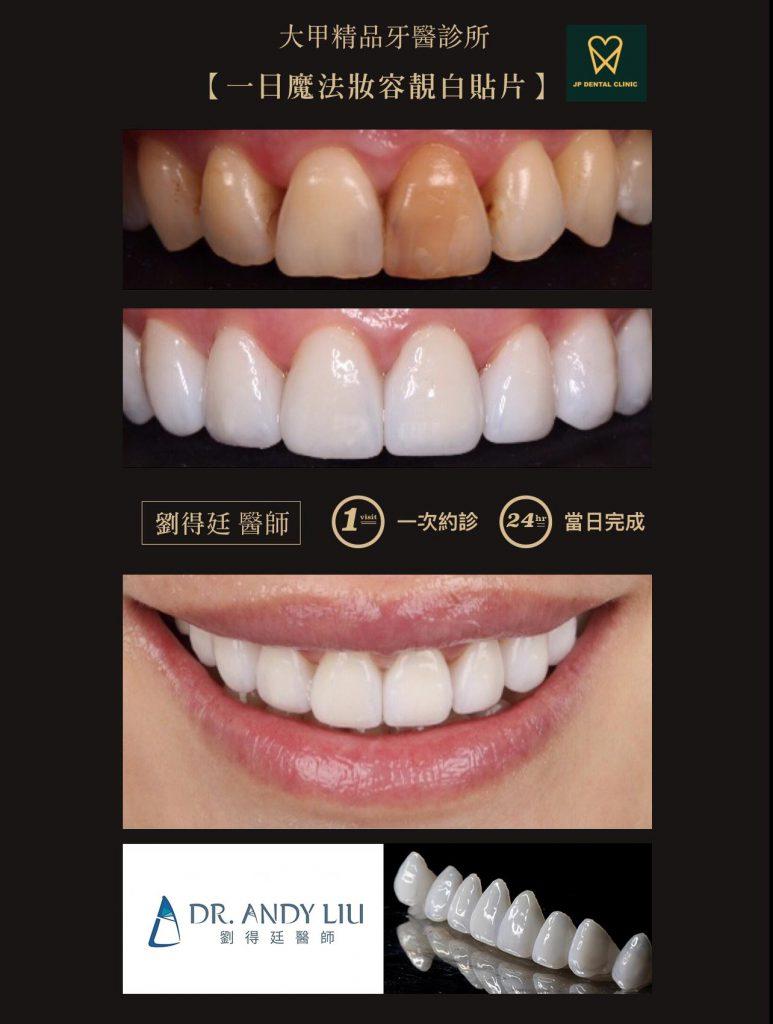 精品牙醫-數位美齒中心-劉得庭醫師-一日矯正美白貼片-陶瓷貼片案例