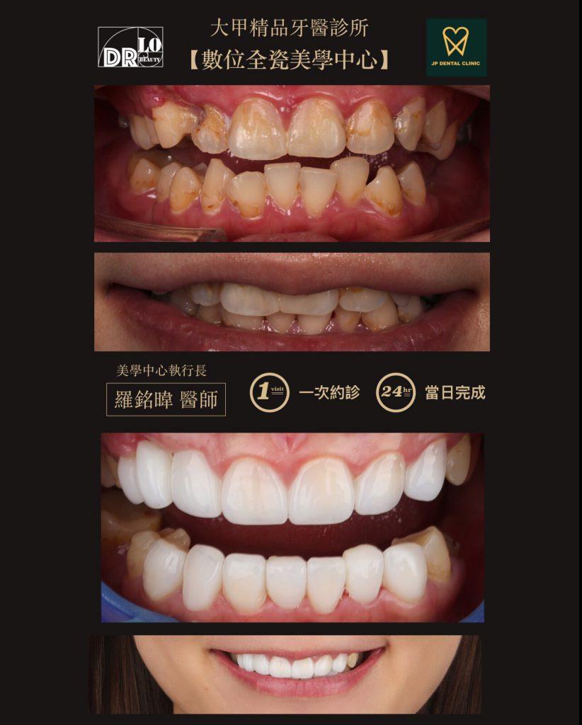精品牙醫 數位美齒中心 羅銘暐醫師 一日矯正美白貼片 陶瓷貼片案例