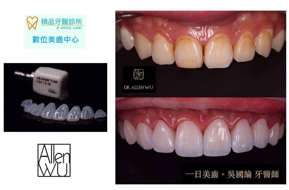 精品牙醫 牙齒美白貼片 大甲美容牙科推薦 吳國綸醫師