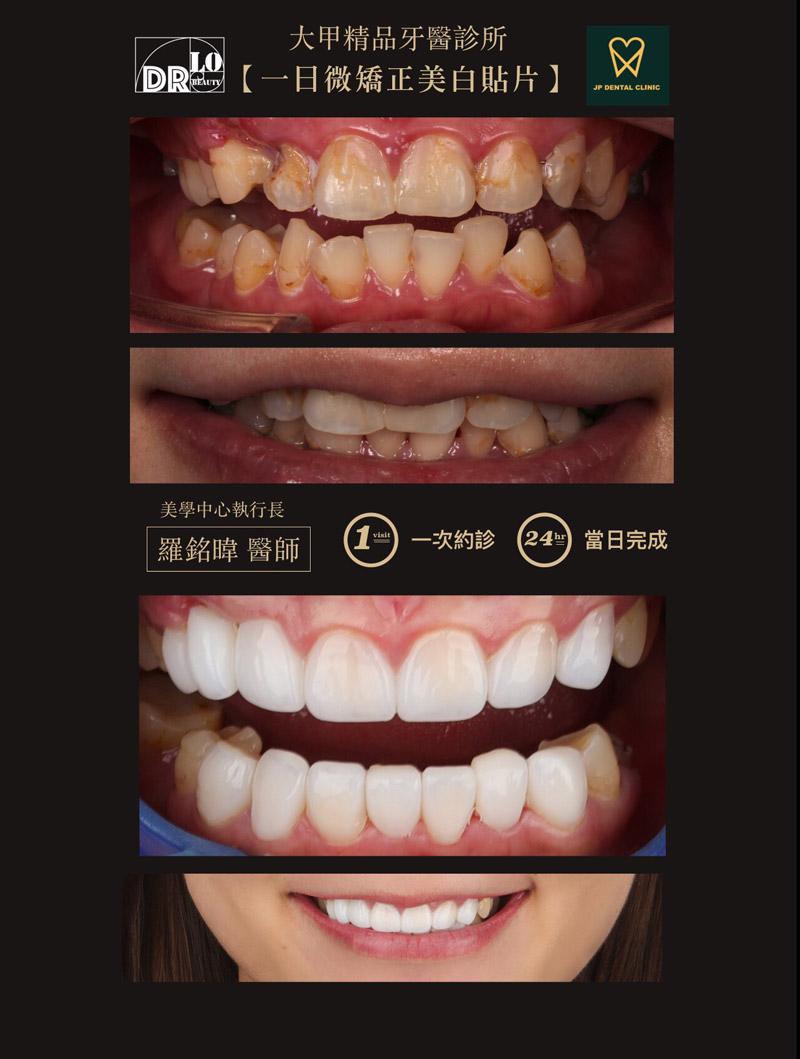 精品牙醫-一日微矯正美白貼片-羅銘暐醫師