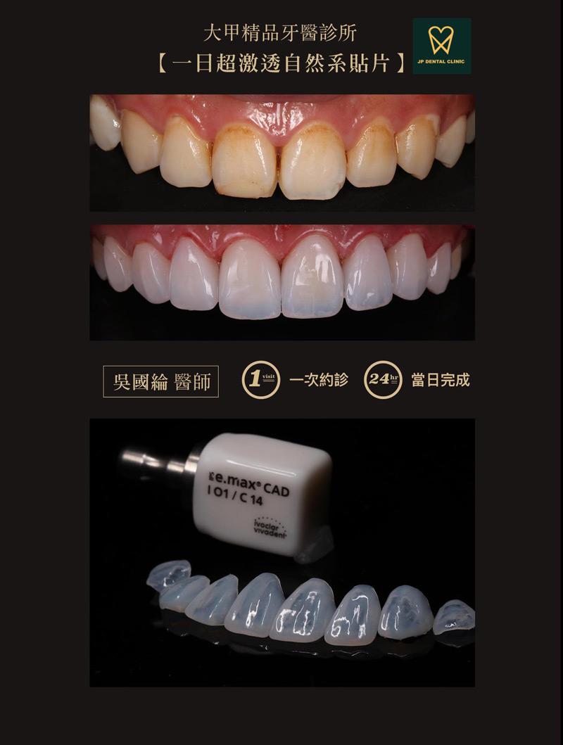 精品牙醫-數位美齒中心-吳國綸醫師-一日超激透自然系貼片