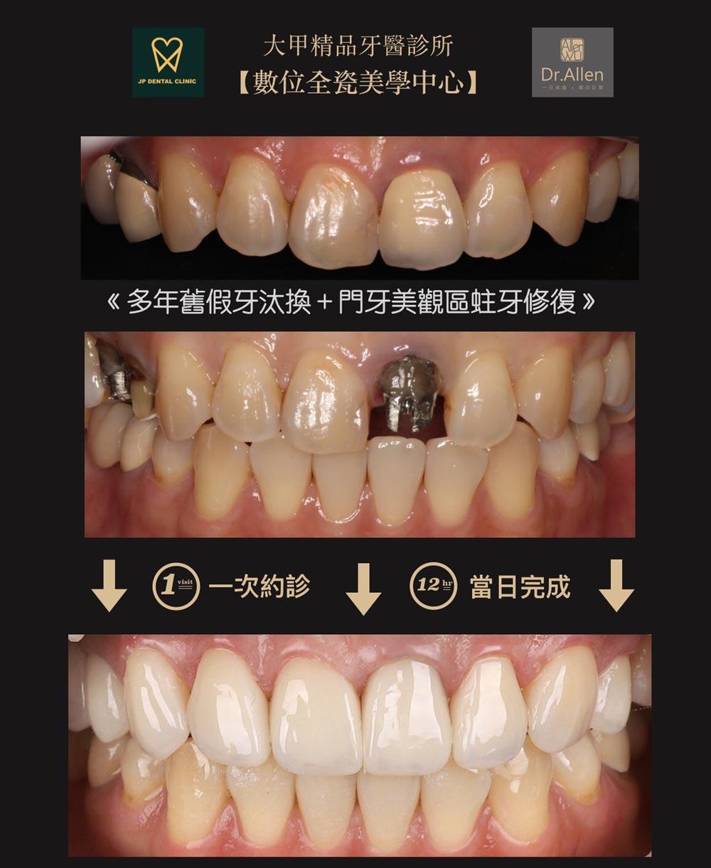 精品牙醫-數位美齒中心-一日矯正美白貼片-陶瓷貼片案例