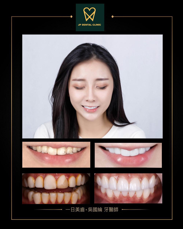 精品牙醫-一日美白陶瓷貼片