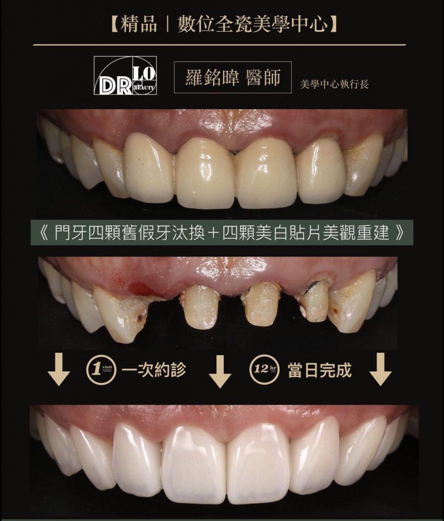 精品牙醫-數位全瓷美學中心-羅銘暐醫師-牙齒美白貼片-一日假牙全瓷冠