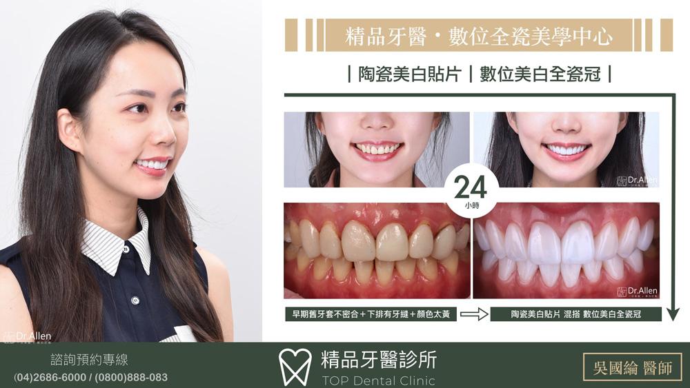 精品牙醫-吳國綸醫師-陶瓷美白貼片