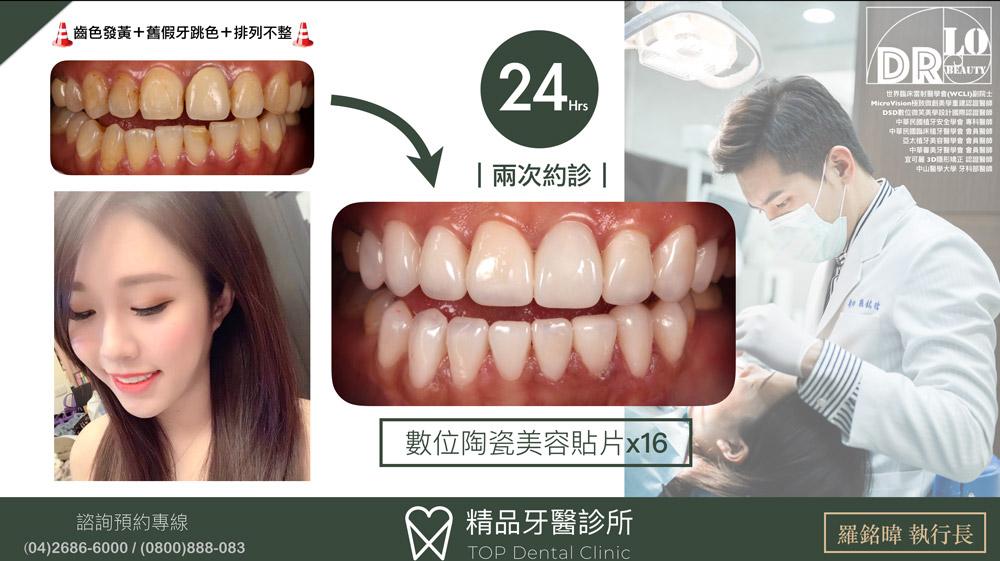 精品牙醫-數位陶瓷貼片-羅銘暐醫師20190830