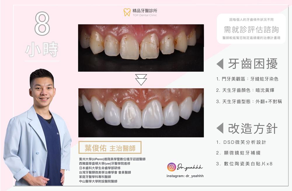大甲精品牙醫-周聖哲醫師案例